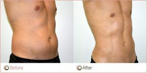 stomach liposuction singapore