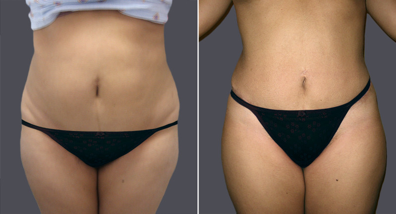 benefits after tummy tuck surgery