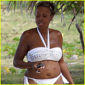 Star Jones tummy tuck